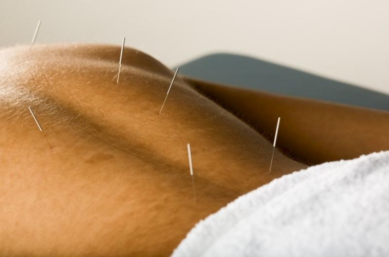 Clínica de acupuntura Vila Olímpia Acupuntura preço
