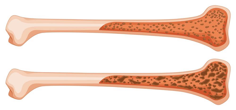 Fisioterapia ortopédica osteoporose